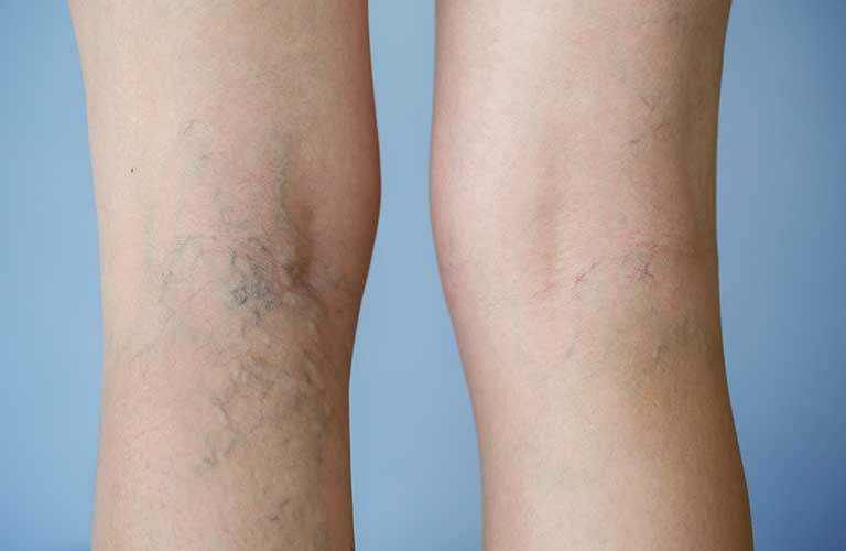 varicose veins, venous disease, before and after pictures, vein treatment in reno, leg swelling, leg pain, heavy legs, venous stasis ulcers reno, venous stasis ulcers sparks,venous stasis ulcers carson city