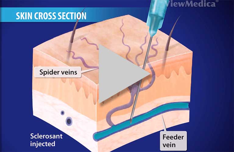 venefit, varicose veins treatment, chronic venous insufficiency, Educational animations detailing minimally invasive vein treatments. Watch videos.